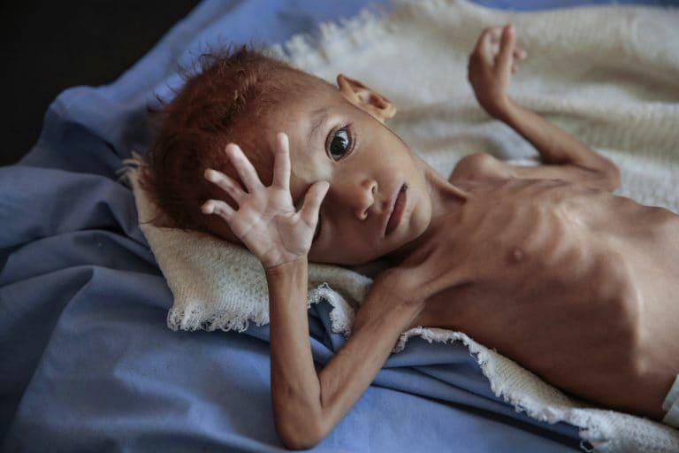 也门交战双方同意开始谈判以释放成千上万的囚犯